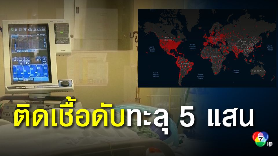 ป่วยติดเชื้อโควิด-19 ทั่วโลก ดับแล้วกว่า 5 แสนคน