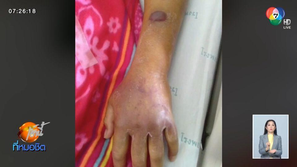 ชาวบ้านถูกแมงมุมมีพิษกัด อาการทรุดหนัก ถูกหามเข้าห้องไอซียู