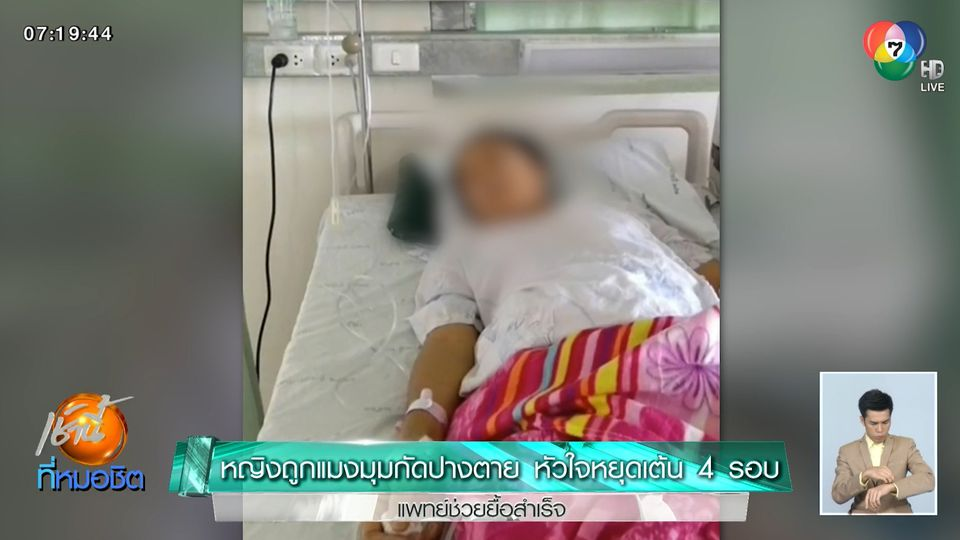หญิงถูกแมงมุมกัดปางตาย หัวใจหยุดเต้น 4 รอบ แพทย์ช่วยยื้อสำเร็จ