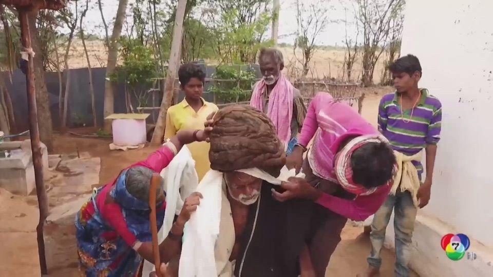 ชายชราวัย 95 ปี ที่อินเดีย ไม่เคยตัดผมเลยแม้แต่ครั้งเดียว
