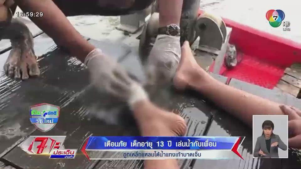เตือนภัย เด็กอายุ 13 ปี เล่นน้ำกับเพื่อน ถูกเหล็กแหลมใต้น้ำแทงเท้าบาดเจ็บ