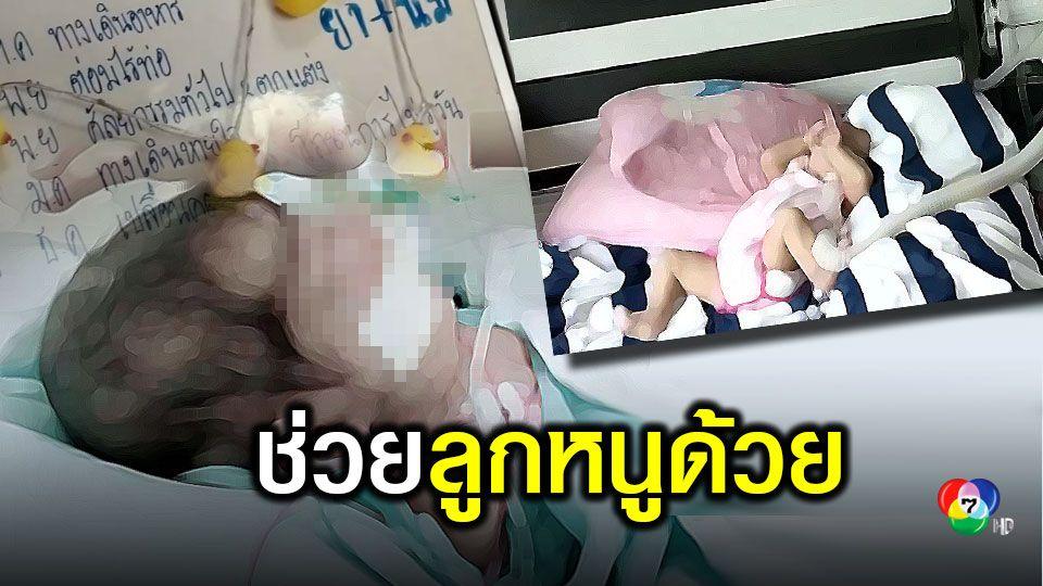 สุดเวทนา เด็ก 2 ขวบ ป่วยสารพัดโรค ซ้ำพ่อแม่เจอพิษโควิด-19 ทำตกงาน