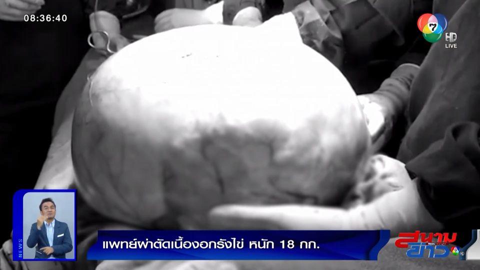 ภาพเป็นข่าว : สุดอึ้ง! แพทย์ผ่าตัดเนื้องอกรังไข่ หนัก 18 กิโลกรัม ของหญิงชาวอินเดีย
