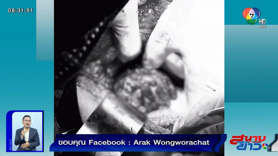 ภาพเป็นข่าว : ชวนสยอง! ผ่าตัดช่วยชีวิตชายฟันพุ-เชื้อลงคอ หวิดเสียชีวิต