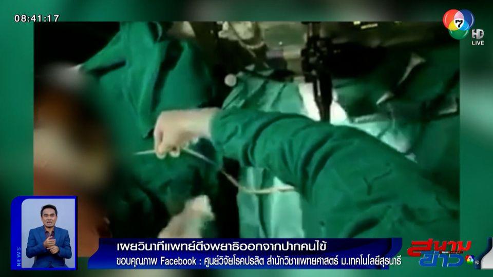 ภาพเป็นข่าว : สยอง! เผยวินาทีแพทย์ดึงพยาธิออกจากปากคนไข้