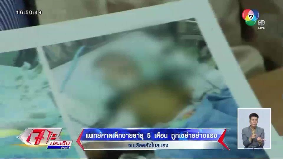 แพทย์คาด ด.ช.วัย 5 เดือน ถูกเขย่าอย่างแรงจนเลือดคั่งในสมอง หลังแม่ฝากเลี้ยง