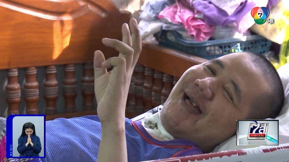 ภานุรัจน์ฟอร์ไลฟ์ : วอนช่วย ชายป่วยวัณโรคขึ้นสมอง จ.ลพบุรี
