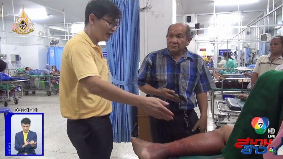 แพทย์เตือนเกษตรกร พบผู้เสียชีวิตแล้ว 1 ราย จากโรคแบคทีเรียกินเนื้อคน จ.น่าน