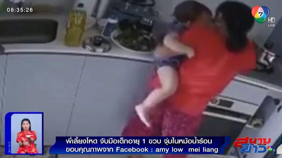 ภาพเป็นข่าว : พี่เลี้ยงโหด! จับมือเด็ก 1 ขวบจุ่มในหม้อน้ำร้อน จนเป็นแผลพุพอง