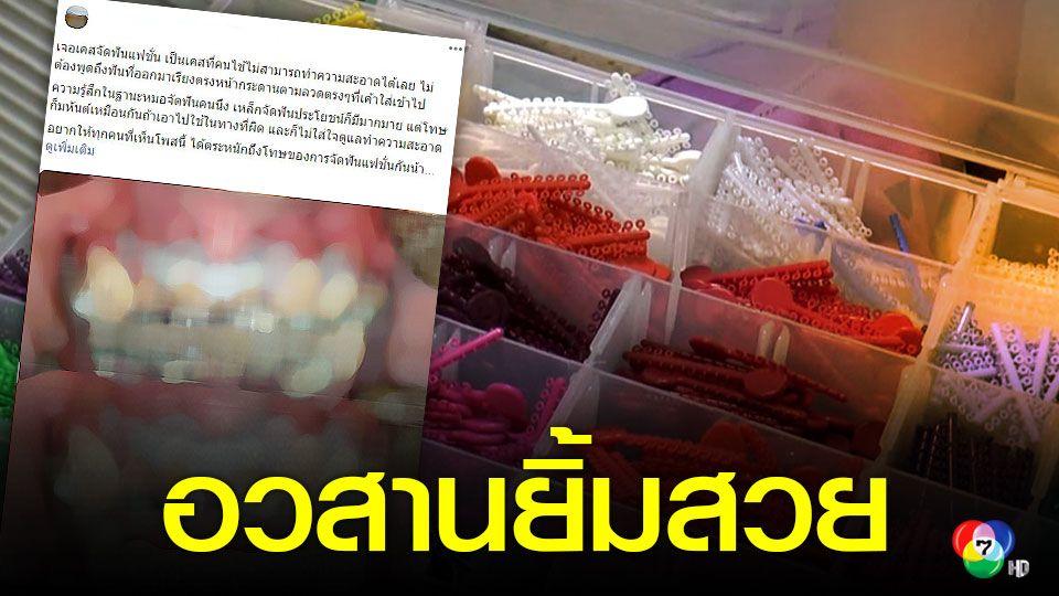 อุทาหรณ์จัดฟันแฟชั่น ช่องปากพัง สยดสยอง