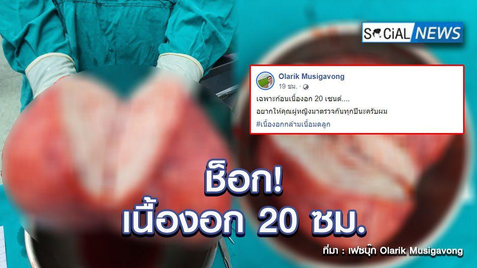 สุดช็อก! คุณหมอเผยภาพ เนื้องอกกล้ามเนื้อมดลูก ขนาดมหึมา 20 ซม.
