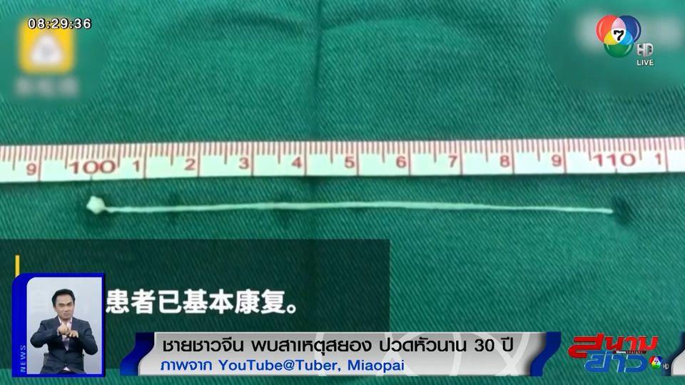 ภาพเป็นข่าว : สุดสยอง! ชายชาวจีนปวดหัวเรื้อรังนานกว่า 30 ปี แพทย์ตรวจพบพยาธิฝังอยู่ในศีรษะ