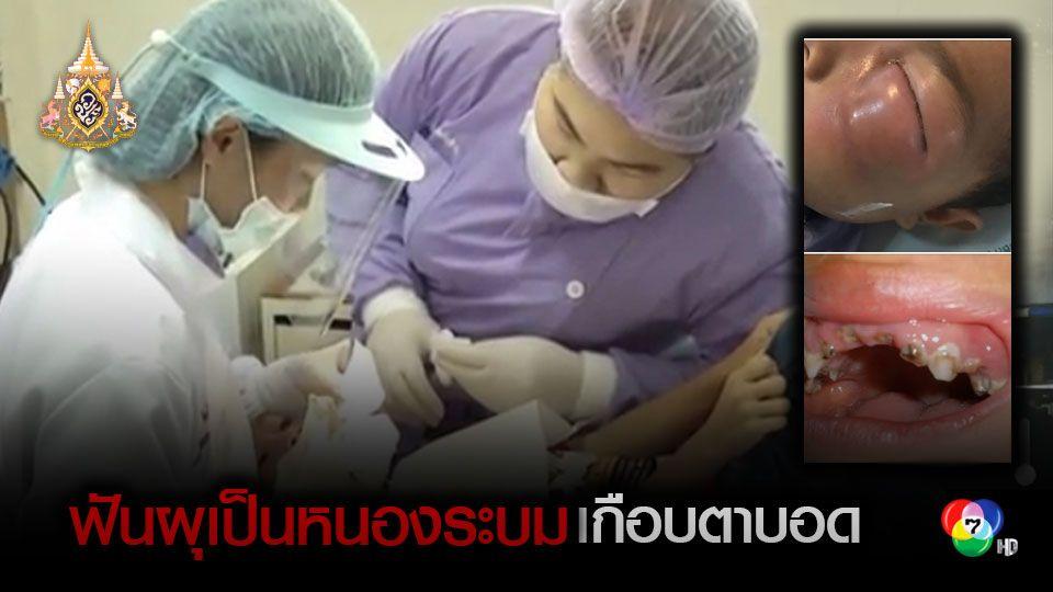 แพทย์เตือนฟันผุติดเชื้อรุนแรงอาจทำให้ตาบอดได้