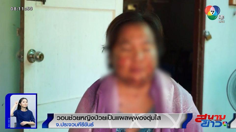 วอนช่วยหญิงป่วยเป็นแผลพุพองตุ่มใส ทรมานนานกว่า 5 เดือน