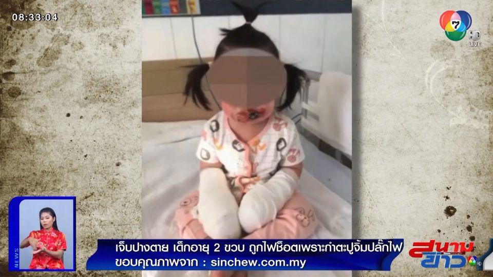 ภาพเป็นข่าว : เจ็บปางตาย! เด็ก 2 ขวบโดนไฟฟ้าช็อต เพราะหยิบตะปูไปเสียบปลั๊กไฟ