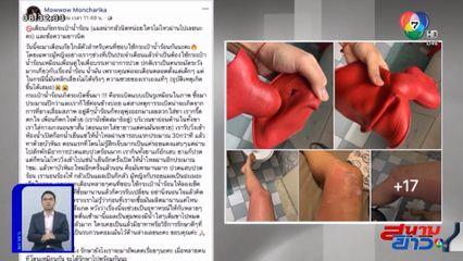 ภาพเป็นข่าว : สาวโพสต์เตือนภัยกระเป๋าน้ำร้อนระเบิด ลวกขาเป็นแผลเหวอะ