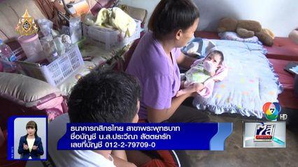 ภานุรัจน์ฟอร์ไลฟ์ : วอนช่วย น้องภีม ทารกพิการซ้ำซ้อน