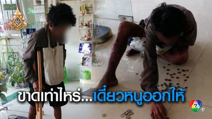 น้ำใจคนไทย ชายพิการมาซื้อไม้ค้ำยัน แต่เงินไม่พอ ลูกจ้างสาวใจดีอาสาออกให้