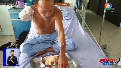 คนงานเฝ้าไร่ถูกร็อตไวเลอร์กัดเป็นแผลเหวอะ แพทย์ต้องตัดแขนขวาทิ้ง