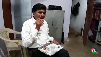 ชายชาวอินเดีย เสพติดกินกระจกนานกว่า 45 ปี